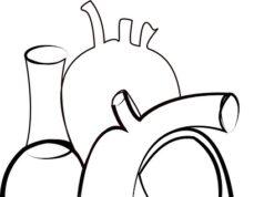 katetrizace srdce